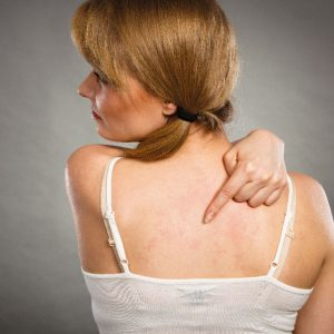 Ease Eczema Cream